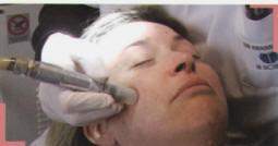 seance micro dermabrasion