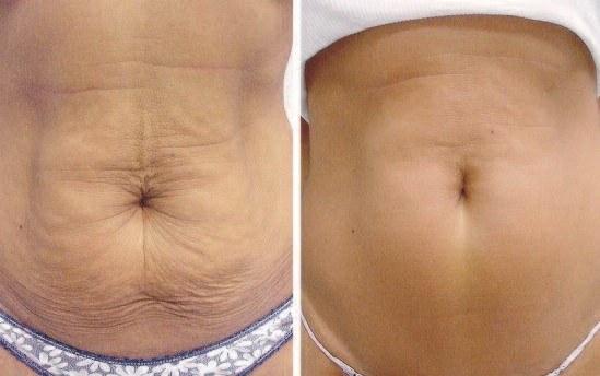 resserrement cutané non chirurgical après la perte de poids