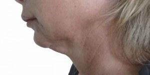 Femme de 43 ans, relâchement du cou et bajoue sans surcharge graisseuse importante.