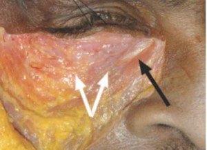 Le muscle orbiculaire des paupières