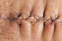 cicatrice sur le ventre