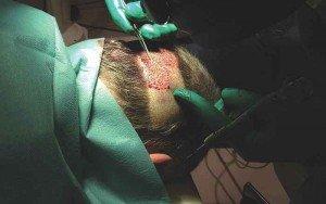 Prélèvement au niveau de la zone occipitale