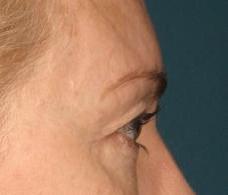 article AFME sujet 1 sourcil avant traitement photo 3