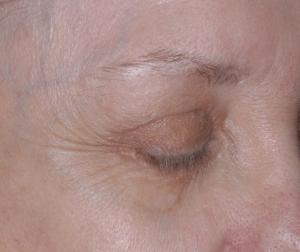 article AFME sujet 2 sourcil avant traitement photo 5