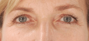 article AFME sujet 3 asymetrie sourcil avant traitement photo 7