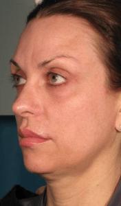 article AFME sujet 4 full face avant traitement photo 9
