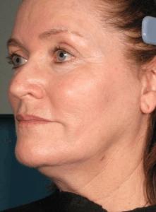 article AFME sujet 5 full face avant traitement photo 12