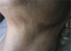 Après 3 sessions MESOLIS + IDS sur le cou Micro-papules t sous le menton