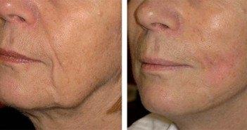 résultats de fils tenseurs sur les joues