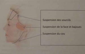 suture élastique en silicone,