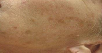 taches marron sur la joue
