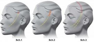 Techniques d'implantation