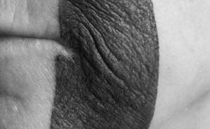 Figure 3. Mise en évidence de la texture cutanée.