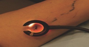 Thrombectomie à l'aiguille, sous transillumination.