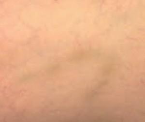 Pigmentation post microsclérothérapie.
