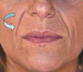 Rotation interne lors du vieillissement