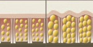 La physiopathologie du développement des nodules de cellulite
