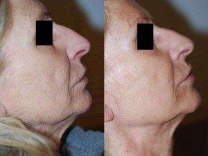 aspect à J0 et à J195 des la qualité de la peau et de l'amélioration de la profondeur des rides après 3 traitements.