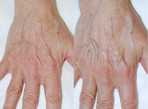amélioration de la qualité de la peau des mains . A gauche J0, à droite J195