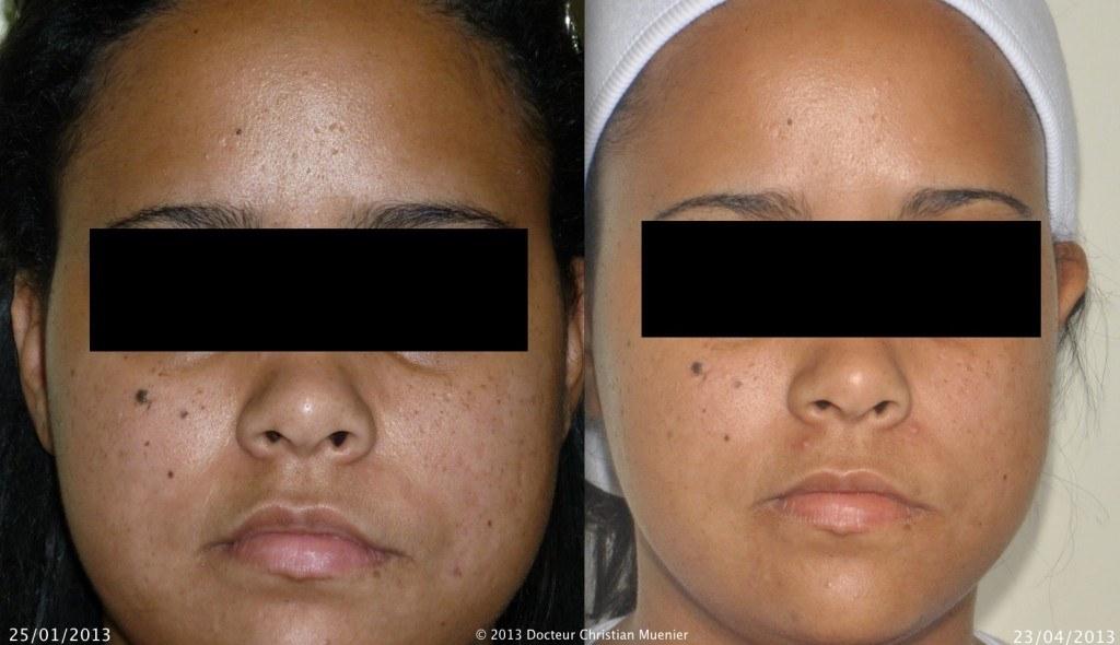 Cicatrices d'acné - cliquez pour agrandir