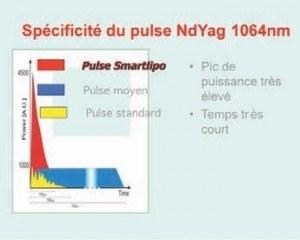 caractéristique du pulse Nd Yag