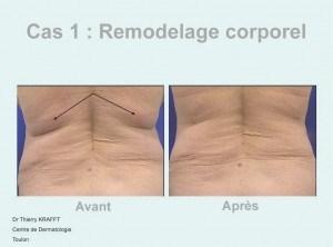 Remodelage Corporel