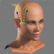 tension des fils vers le haut du crâne