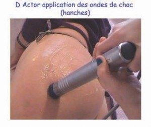 Application des ondes de choc (hanches)