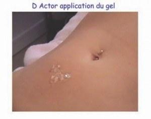 Application du gel