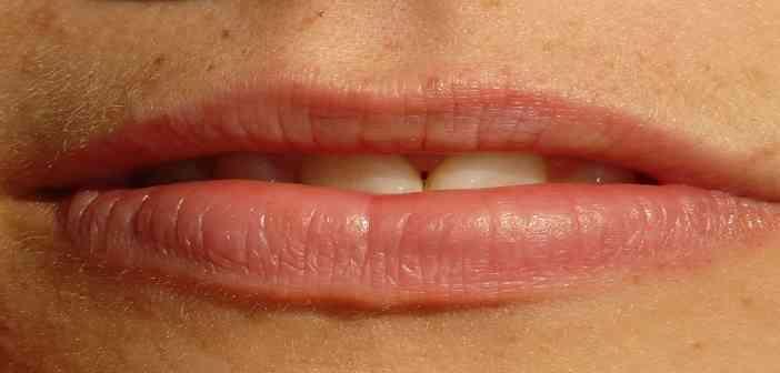 le comblement durable des lèvres