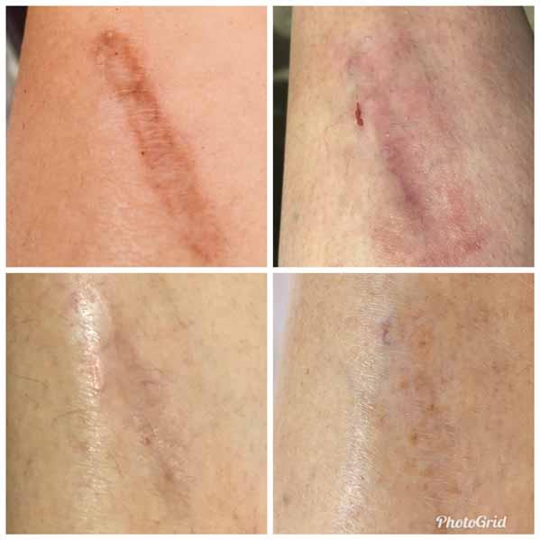 Cicatrice de jambe avant et après traitement laser