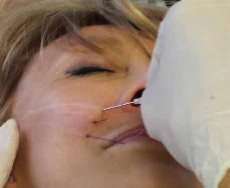 fils crantes implantes dans une joue