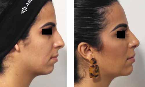 profil de femme avant apres injection nez et menton