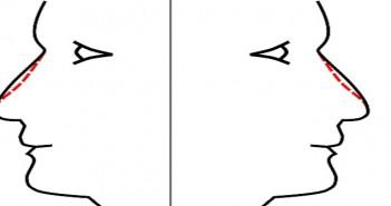 Rhinoplastie médicale, remodelage du nez