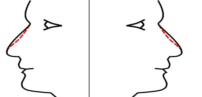 Remodelage du nez