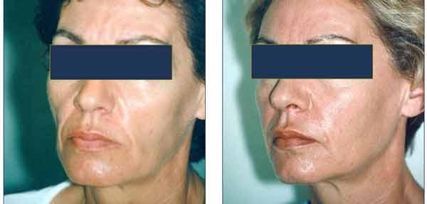 résultat remodelage visage de femme par injections