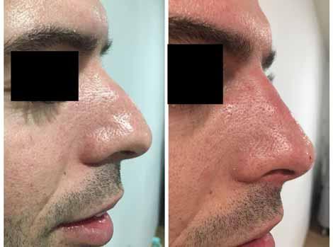 nez de profil avant et après injections