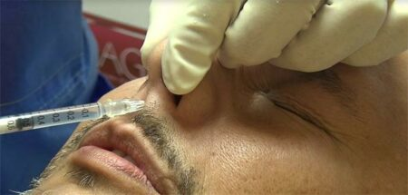 injection du nez