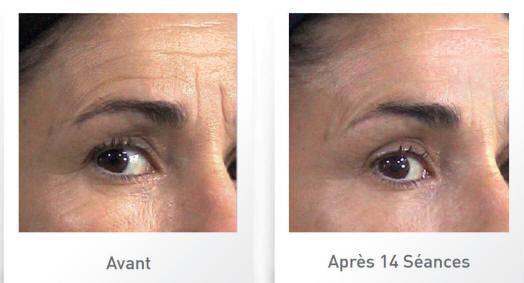 stimulation-visage-AVAP