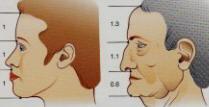 profil et nez avant-après vieillissement