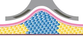 Pli de graisse et de peau dans l'applicateur de cryolipo