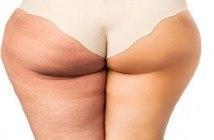 cellulite des fesses et cuisses