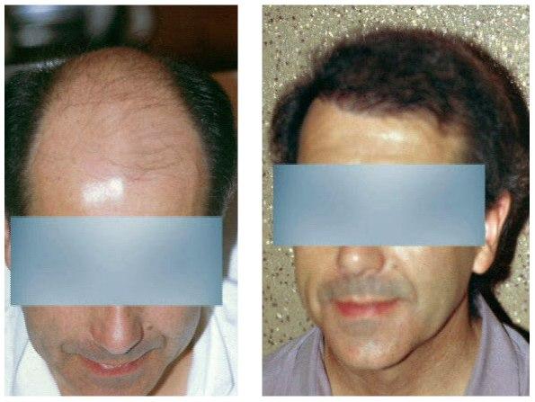 crane dégarni : avant et après greffe de cheveux