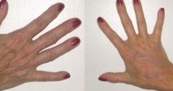 mains avant et après injections correctrices