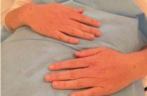 mains après injections volumatrices