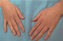 mains avant traitement esthétique