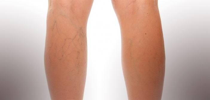 varices et vaisseaux des jambes