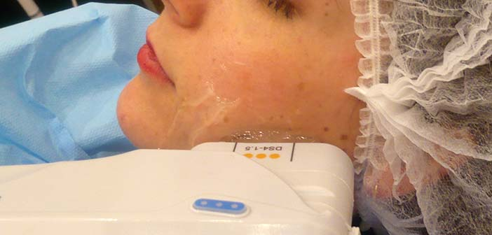 appareil à ultrasons sur le visage