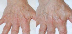 mains après PRP et acide hyaluronique