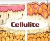 Cellulite fémorale : physiologie, techniques de prise en charge